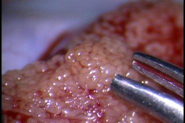 bloqueo de espermatogénesis